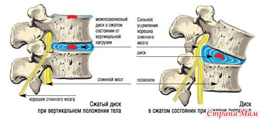 Боли в паху при синдроме грушевидной мышцы