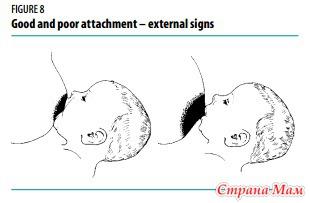 Выпадение волос меланома