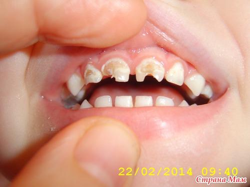 Обязательно ли ставить коронку на зуб