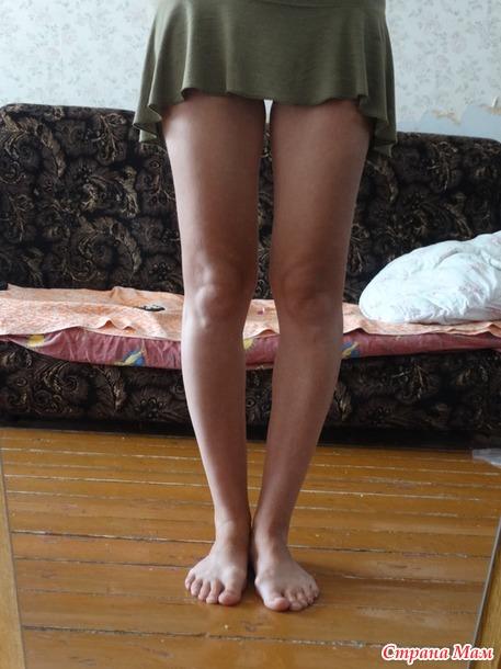 фото ног кривых